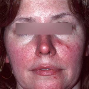 Rozex perioral dermatit